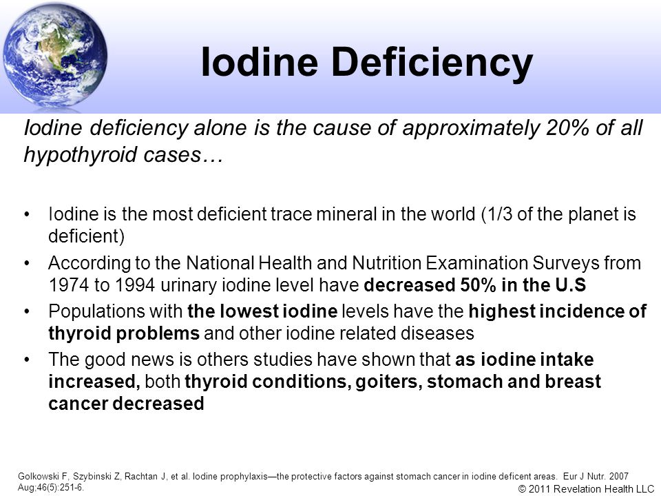 Iodine Deficiency Iodine deficiency alone is the cause of approximately 20% of all hypothyroid cases…