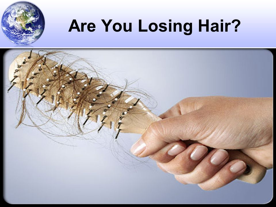 Are You Losing Hair