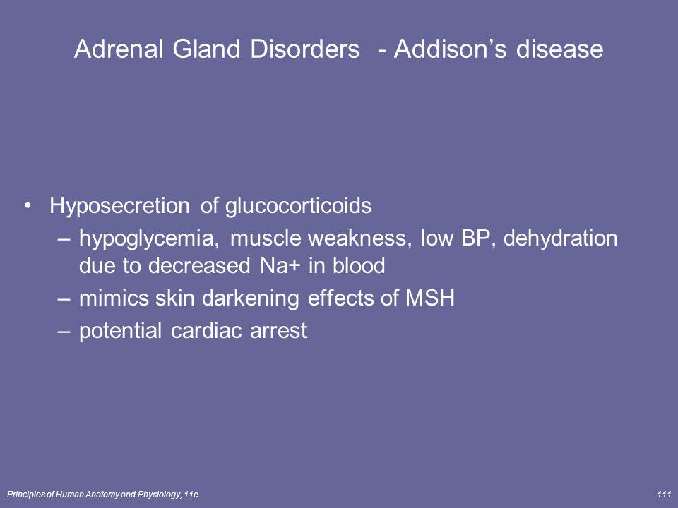 Adrenal Gland Disorders - Addison's disease