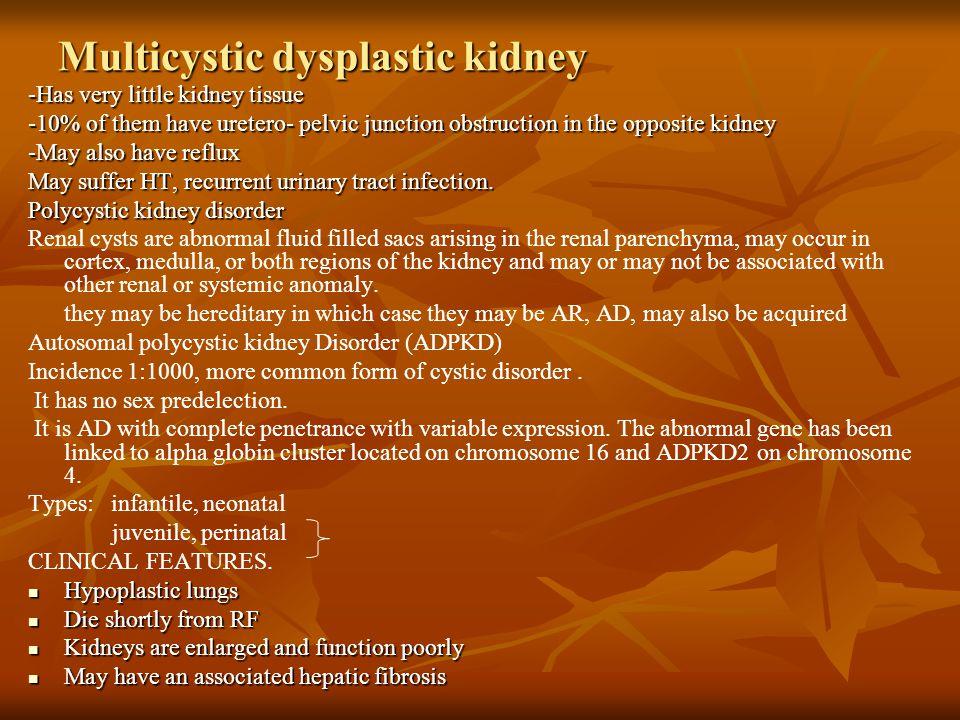 Multicystic dysplastic kidney