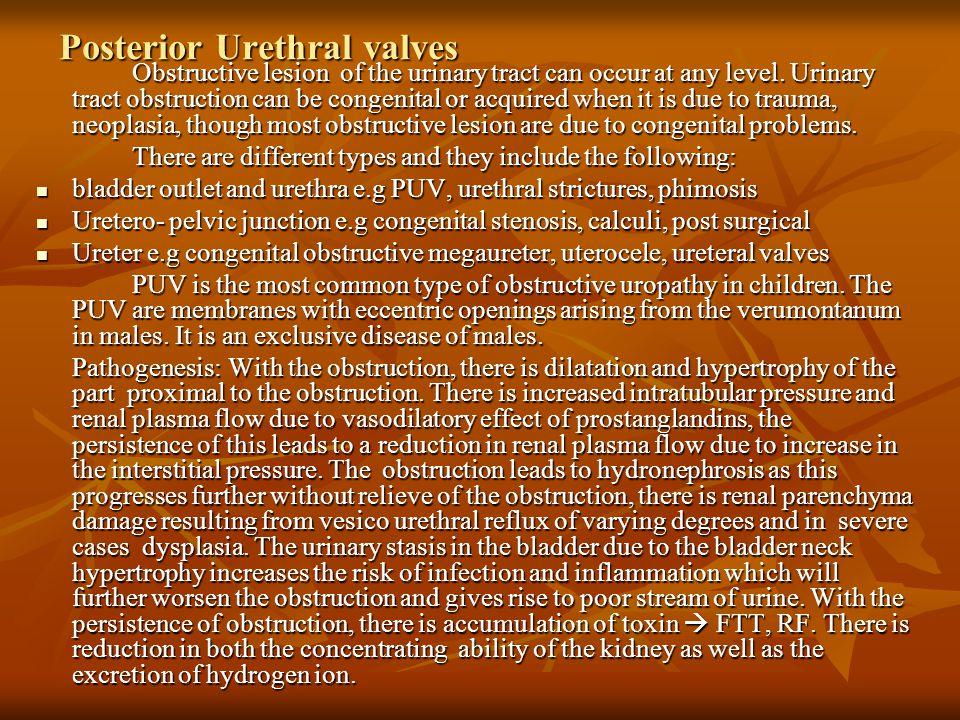Posterior Urethral valves