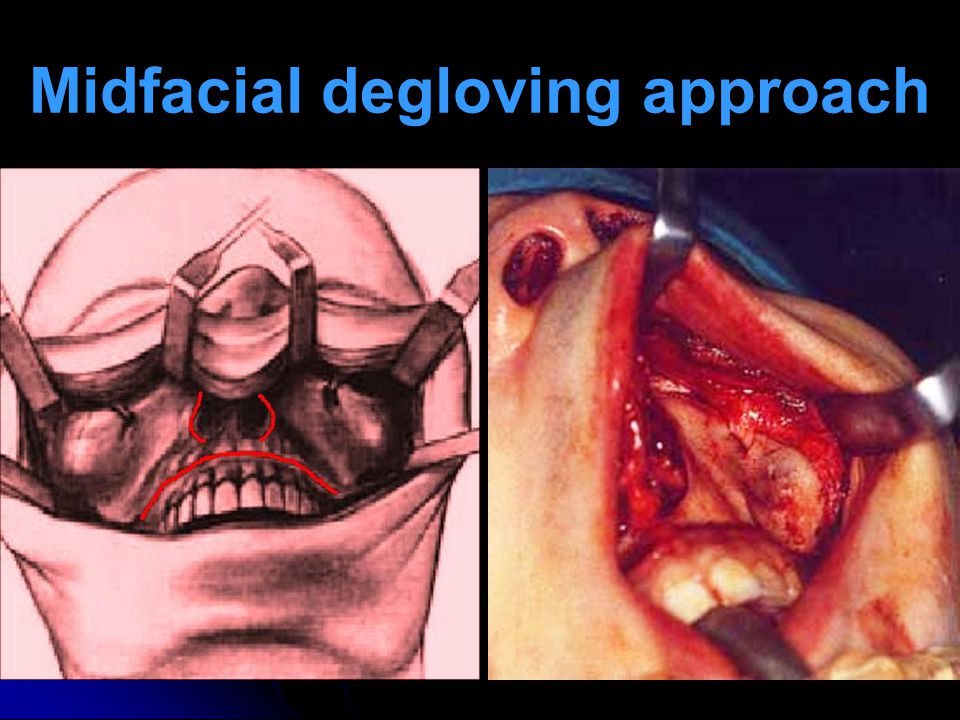 Midfacial degloving approach