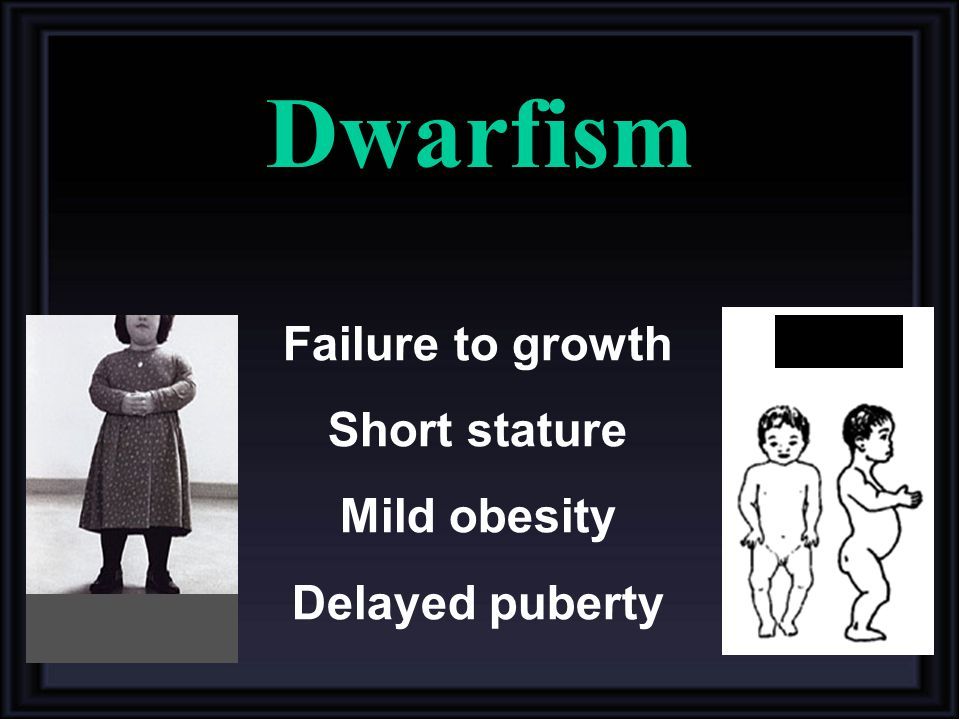 Dwarfism Failure to growth Short stature Mild obesity Delayed puberty