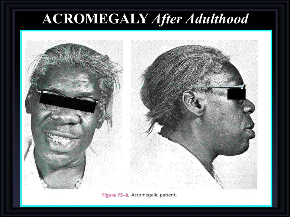 ACROMEGALY After Adulthood