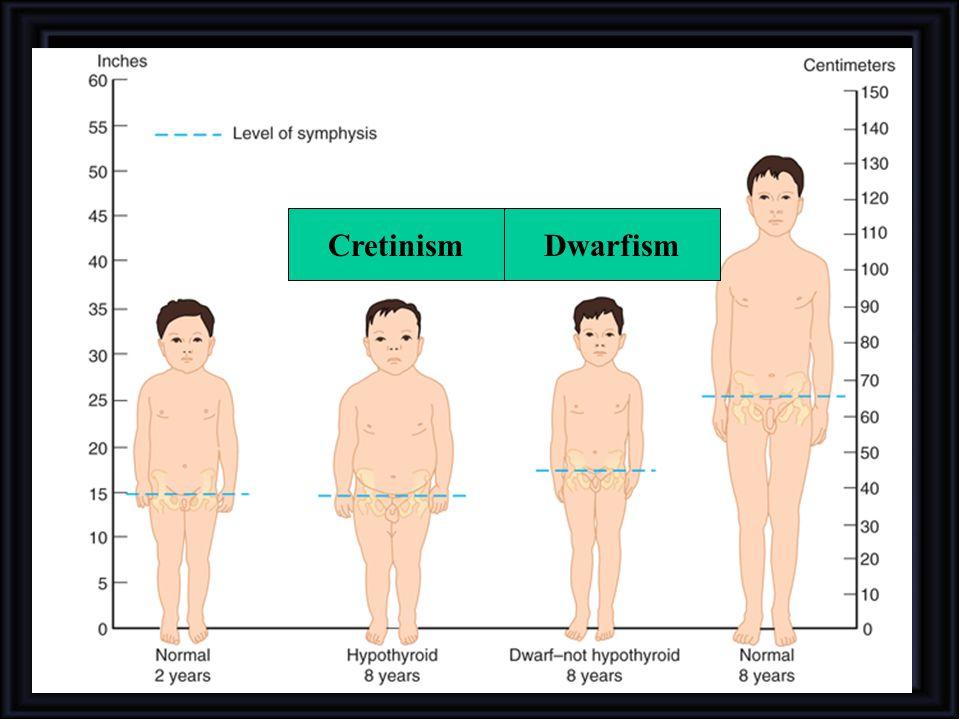 Cretinism Dwarfism