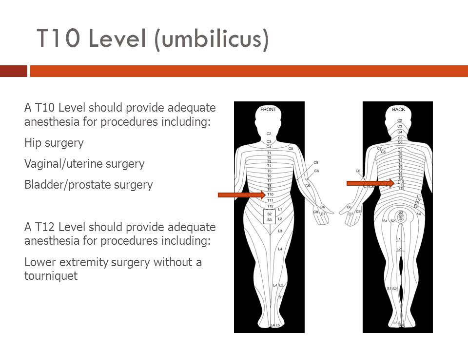 T10 Level (umbilicus) A T10 Level should provide adequate anesthesia for procedures including: Hip surgery.