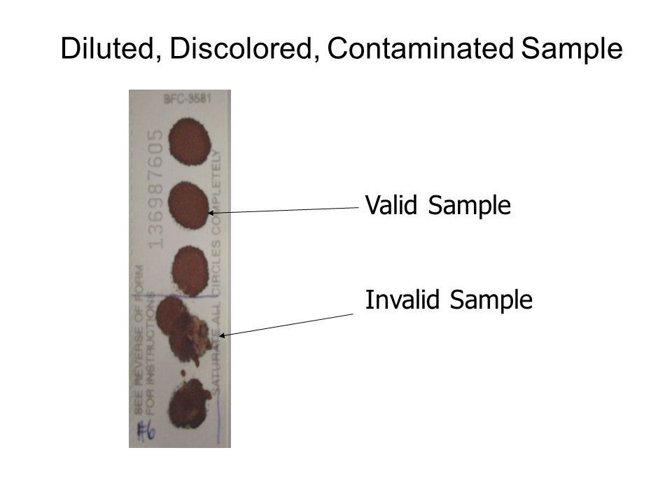 Diluted, Discolored, Contaminated Sample