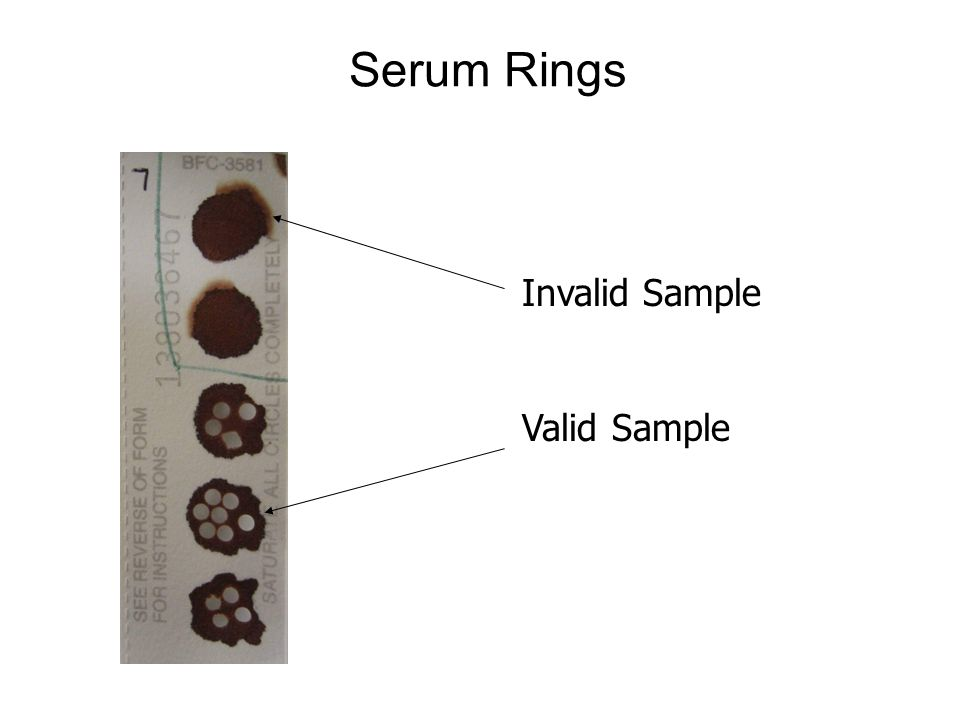 Serum Rings Invalid Sample Valid Sample