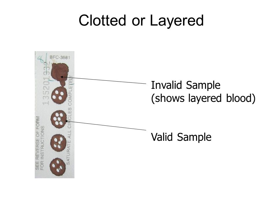 Clotted or Layered Invalid Sample (shows layered blood) Valid Sample