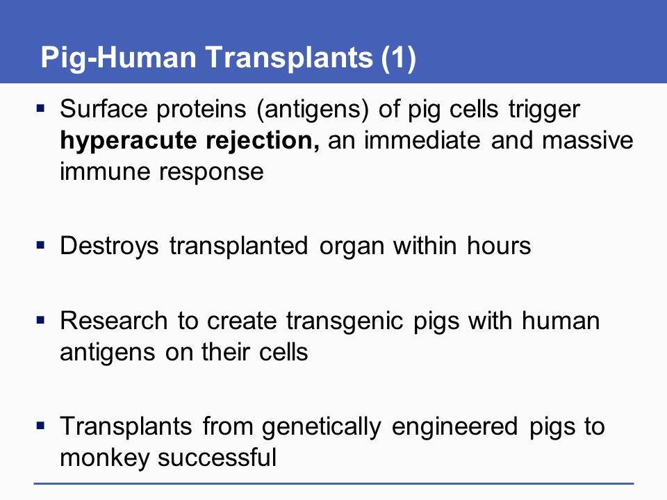 Pig-Human Transplants (1)