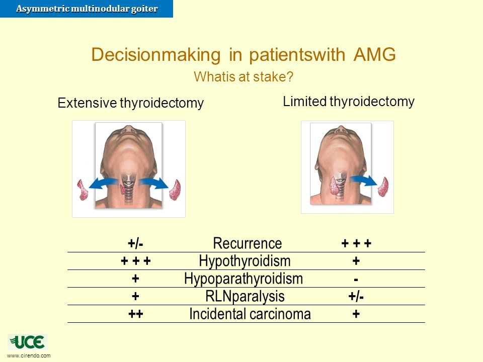 Decisionmaking in patientswith AMG