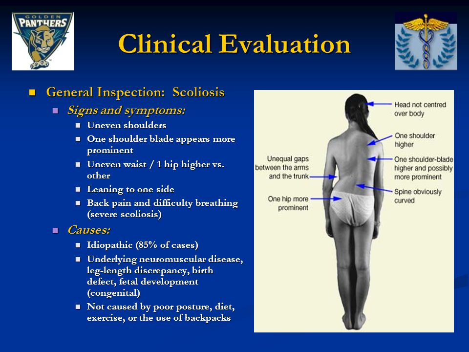 Clinical Evaluation General Inspection: Scoliosis Signs and symptoms: