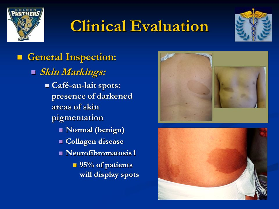 Clinical Evaluation General Inspection: Skin Markings: