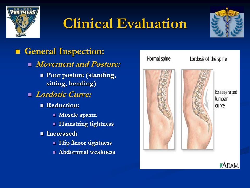 Clinical Evaluation General Inspection: Movement and Posture: