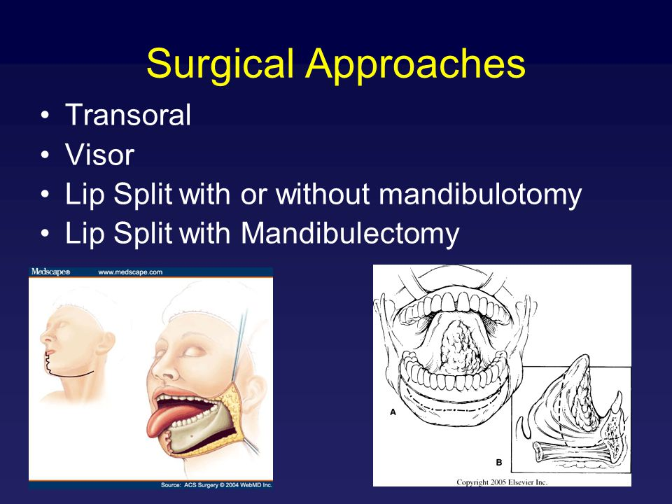 Surgical Approaches Transoral Visor