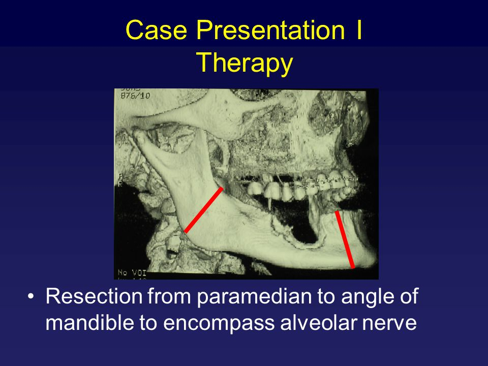 Case Presentation I Therapy