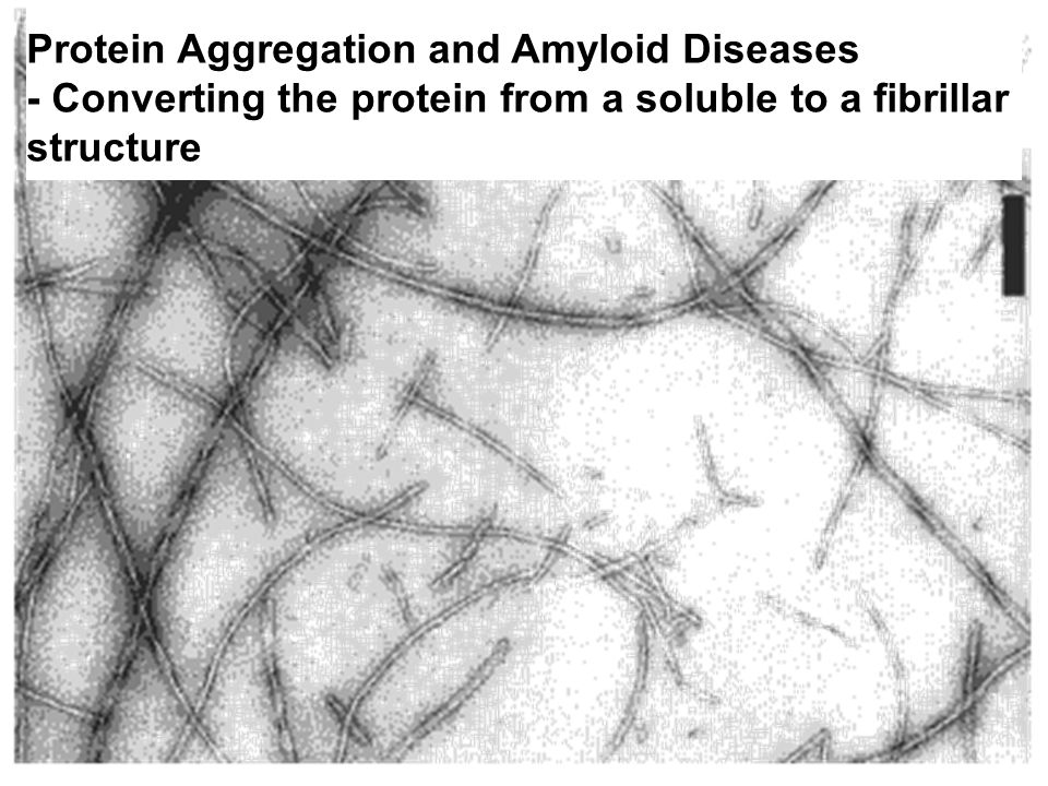 Protein Aggregation and Amyloid Diseases