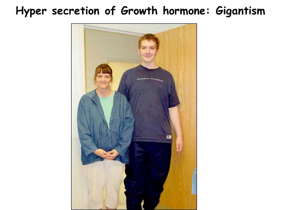 Hyper secretion of Growth hormone: Gigantism