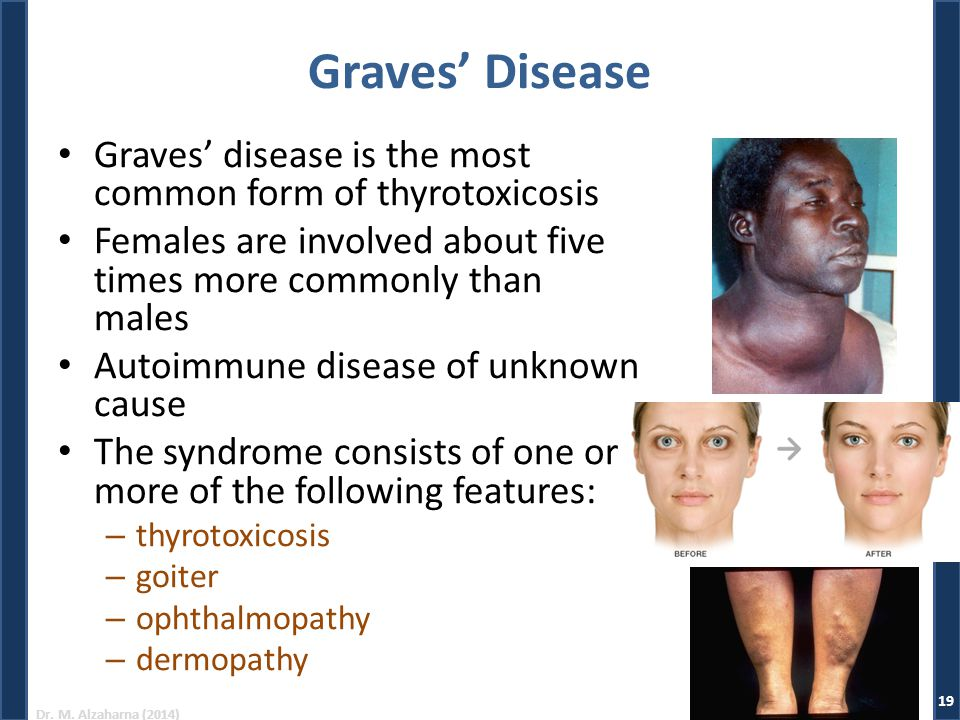 Graves' Disease Graves' disease is the most common form of thyrotoxicosis. Females are involved about five times more commonly than males.