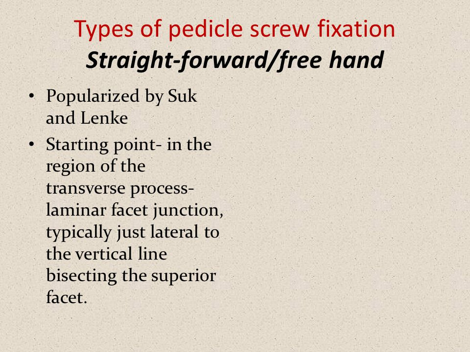 Types of pedicle screw fixation Straight-forward/free hand