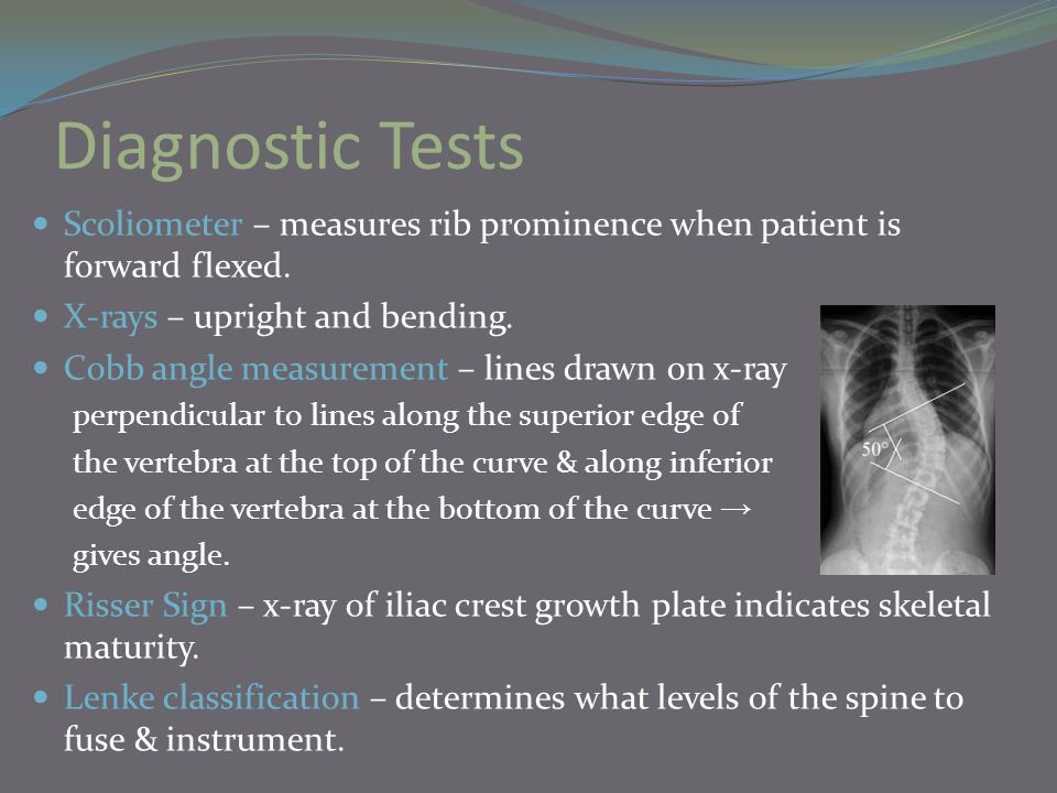 Diagnostic Tests Scoliometer – measures rib prominence when patient is forward flexed. X-rays – upright and bending.