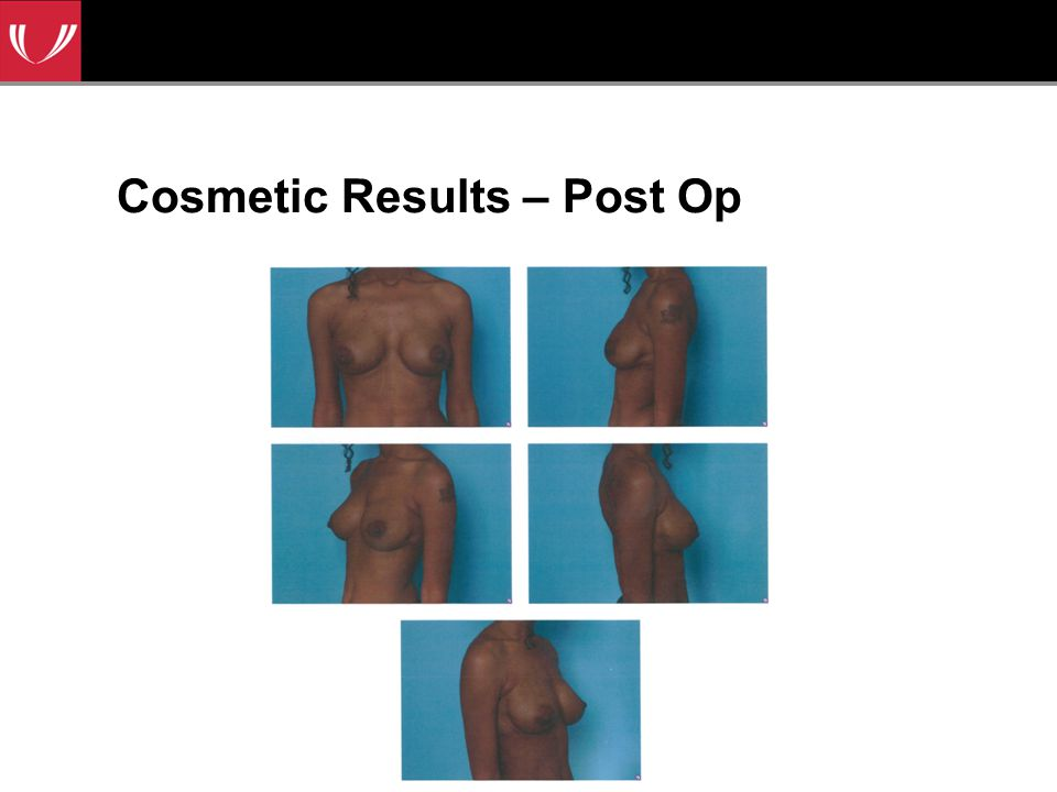 Cosmetic Results – Post Op