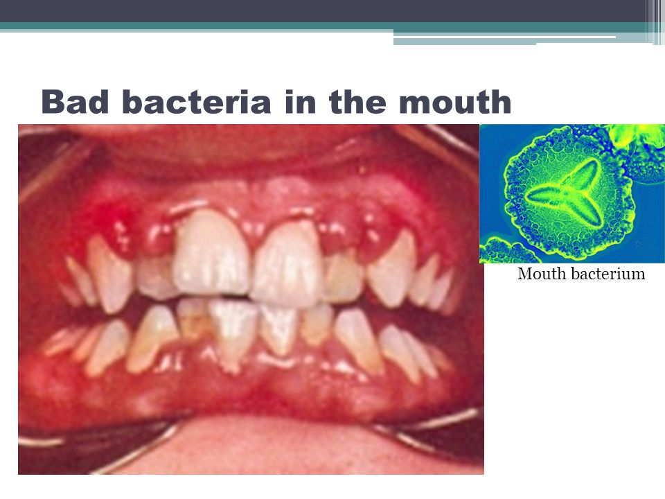 Bad bacteria in the mouth cause teeth to rot.