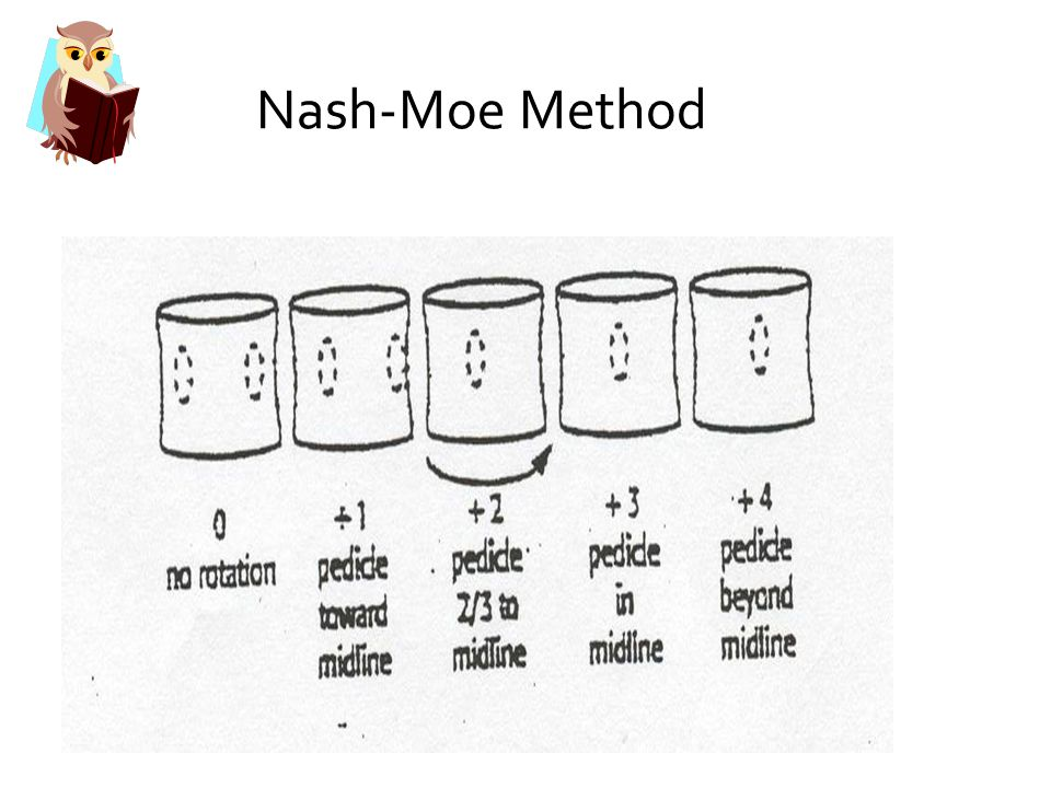 Nash-Moe Method