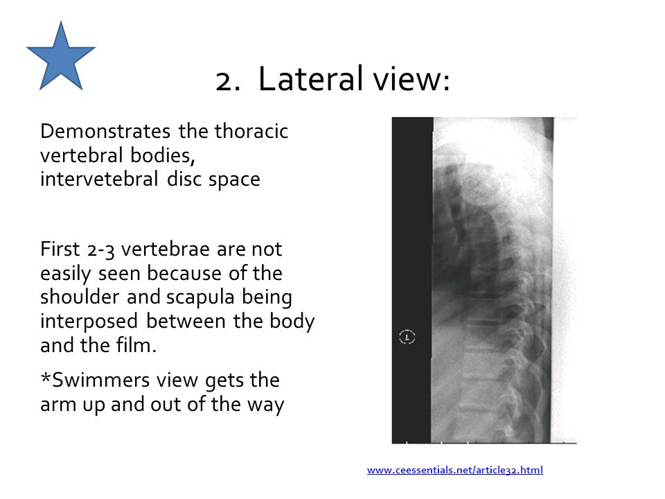 2. Lateral view: Demonstrates the thoracic vertebral bodies, intervetebral disc space.