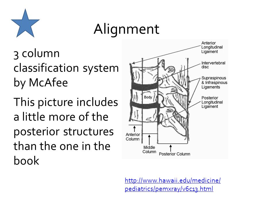 Alignment 3 column classification system by McAfee This picture includes a little more of the posterior structures than the one in the book