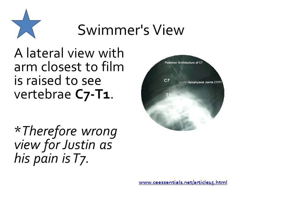 Swimmer s View A lateral view with arm closest to film is raised to see vertebrae C7-T1. *Therefore wrong view for Justin as his pain is T7.