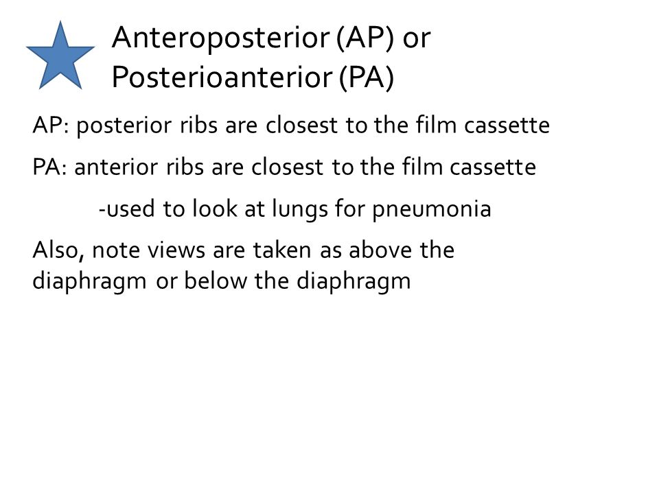 Anteroposterior (AP) or Posterioanterior (PA)