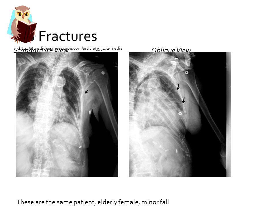 Rib Fractures Standard AP view Oblique View