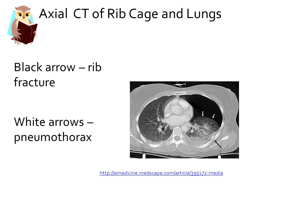 Axial CT of Rib Cage and Lungs