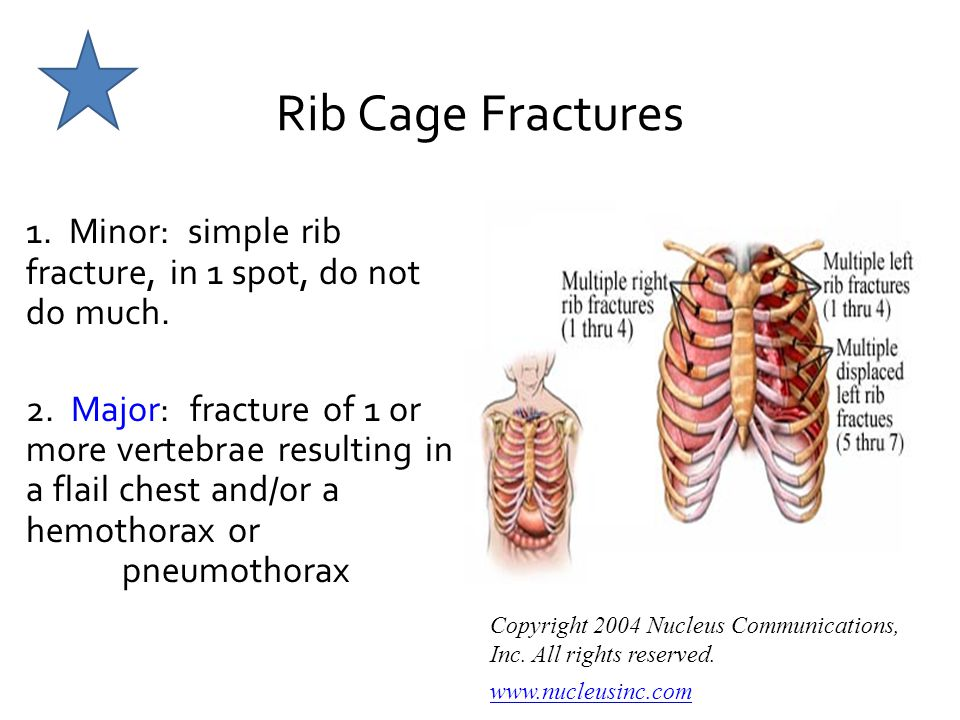 Rib Cage Fractures 1. Minor: simple rib fracture, in 1 spot, do not do much.