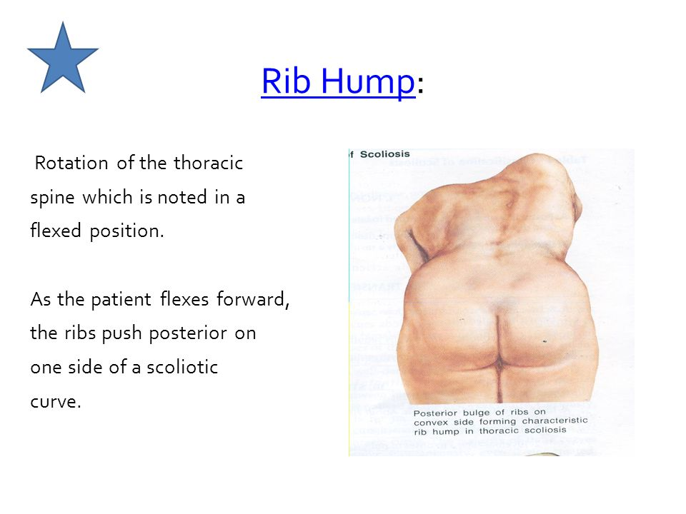 Rib Hump: Rotation of the thoracic spine which is noted in a