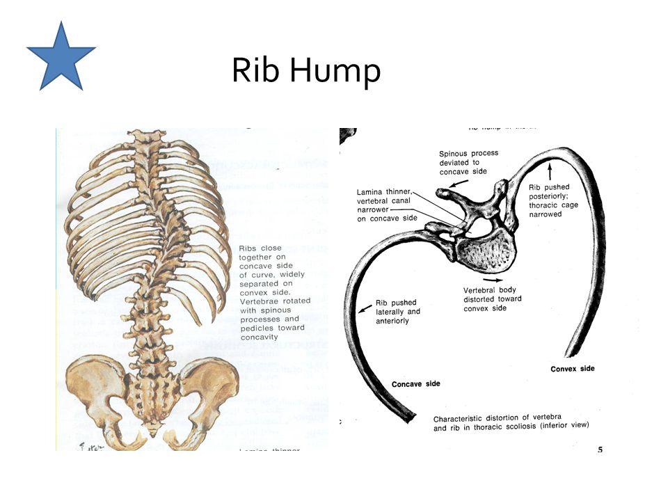 Rib Hump Hump is on the side of the convexity, roatation (referenced to the anterior body) towards convexity.