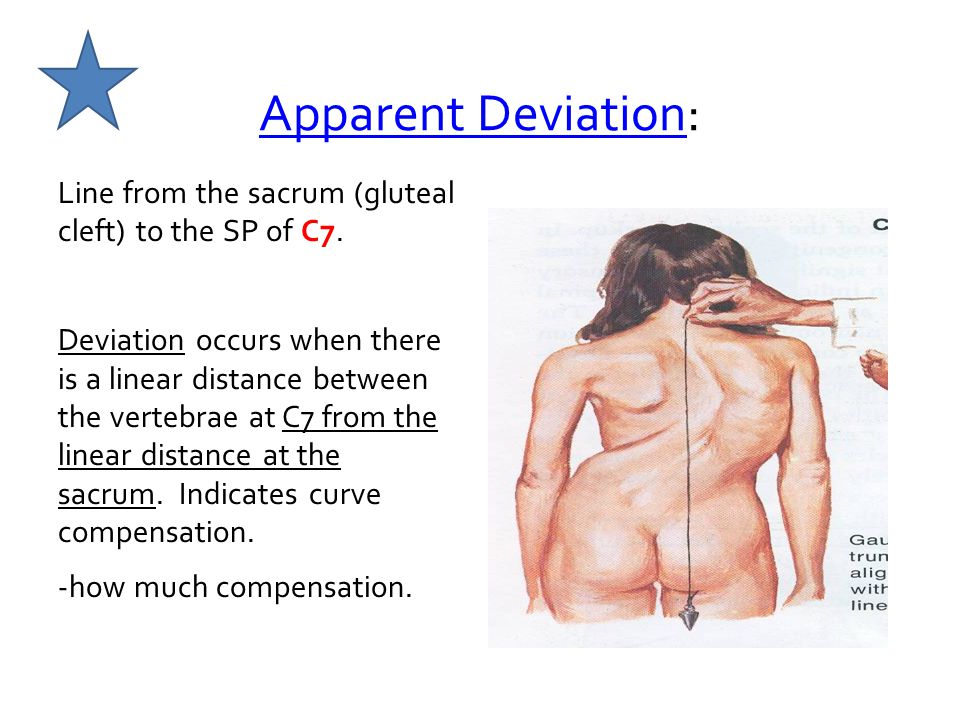 Apparent Deviation: Line from the sacrum (gluteal cleft) to the SP of C7.