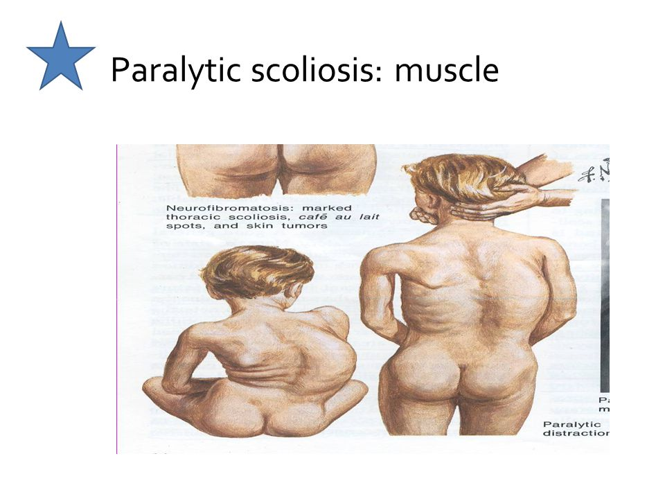 Paralytic scoliosis: muscle
