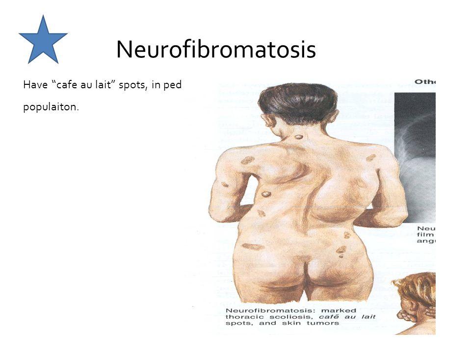 Neurofibromatosis Have cafe au lait spots, in ped populaiton.