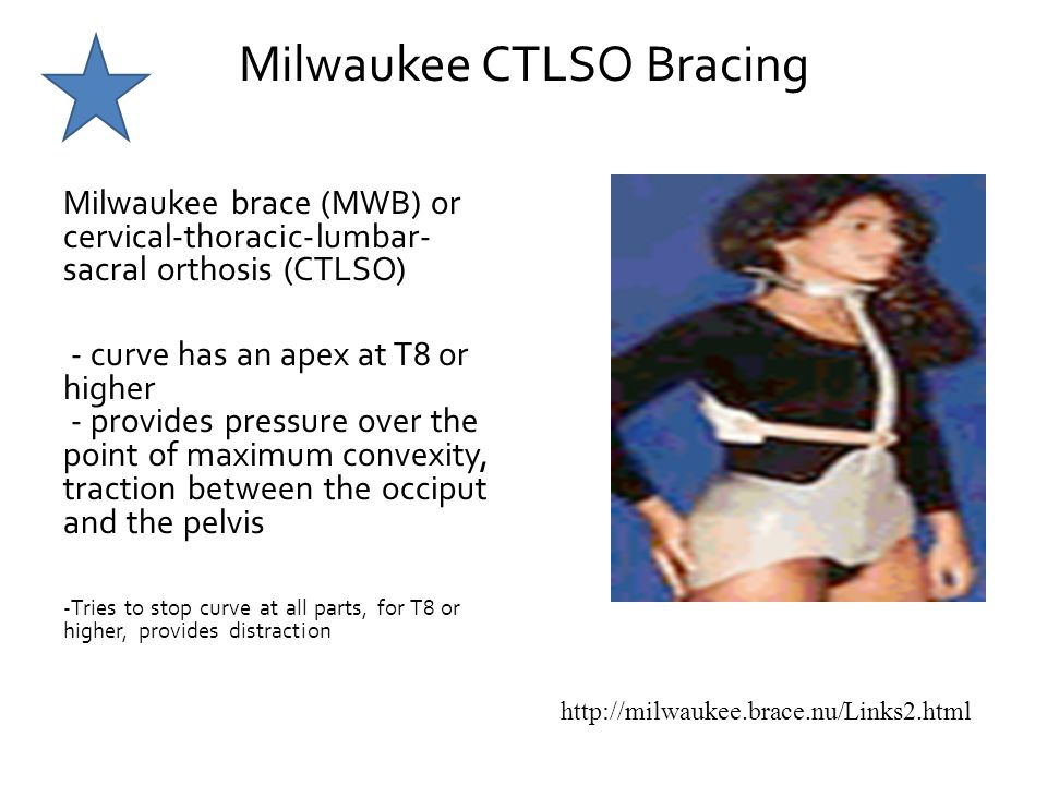 Milwaukee CTLSO Bracing