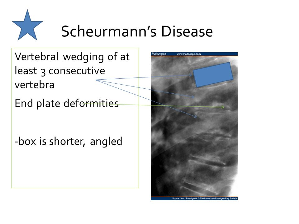 Scheurmann's Disease Vertebral wedging of at least 3 consecutive vertebra End plate deformities -box is shorter, angled