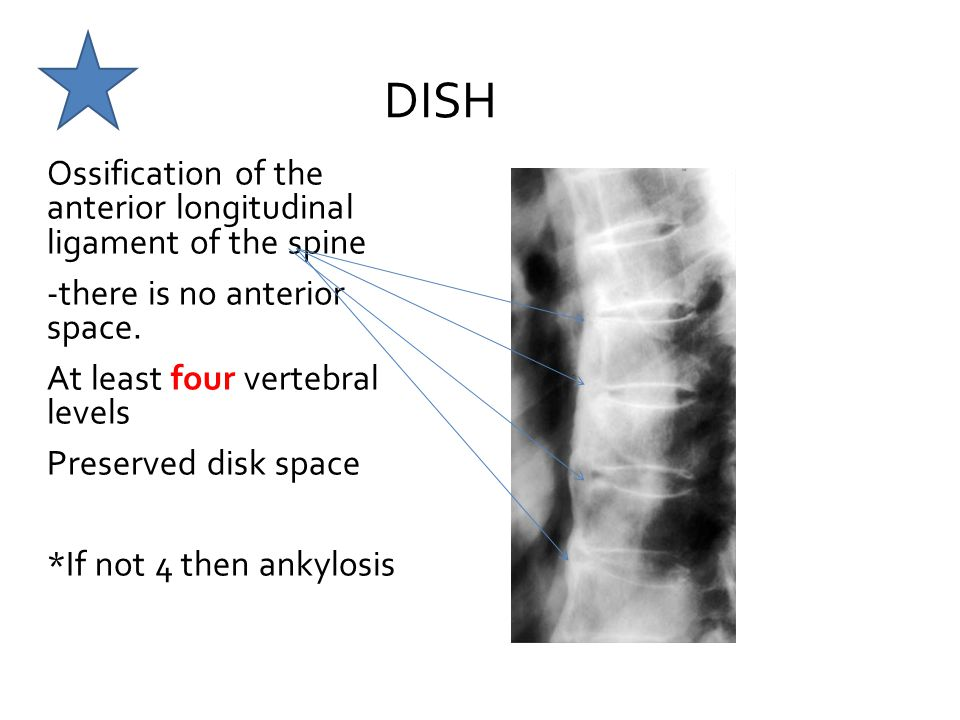 Musculoskeletal Diseases and Disorders: T and L Spine ...
