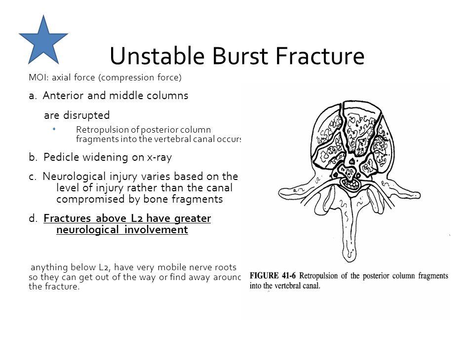 Unstable Burst Fracture
