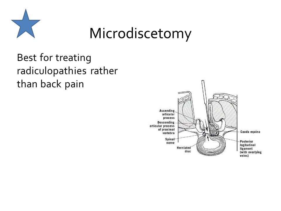 Microdiscetomy Best for treating radiculopathies rather than back pain