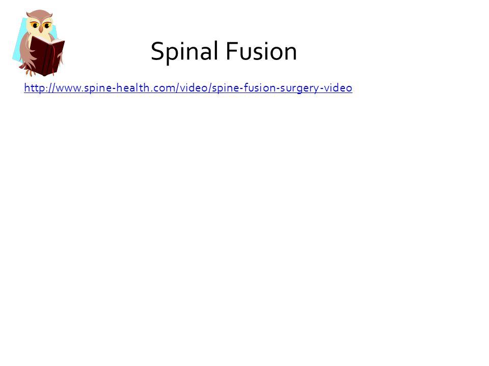 Spinal Fusion http://www.spine-health.com/video/spine-fusion-surgery-video
