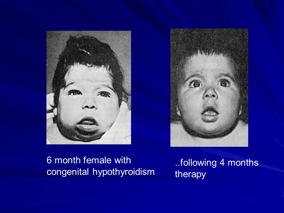 ..following 4 months therapy 6 month female with congenital hypothyroidism