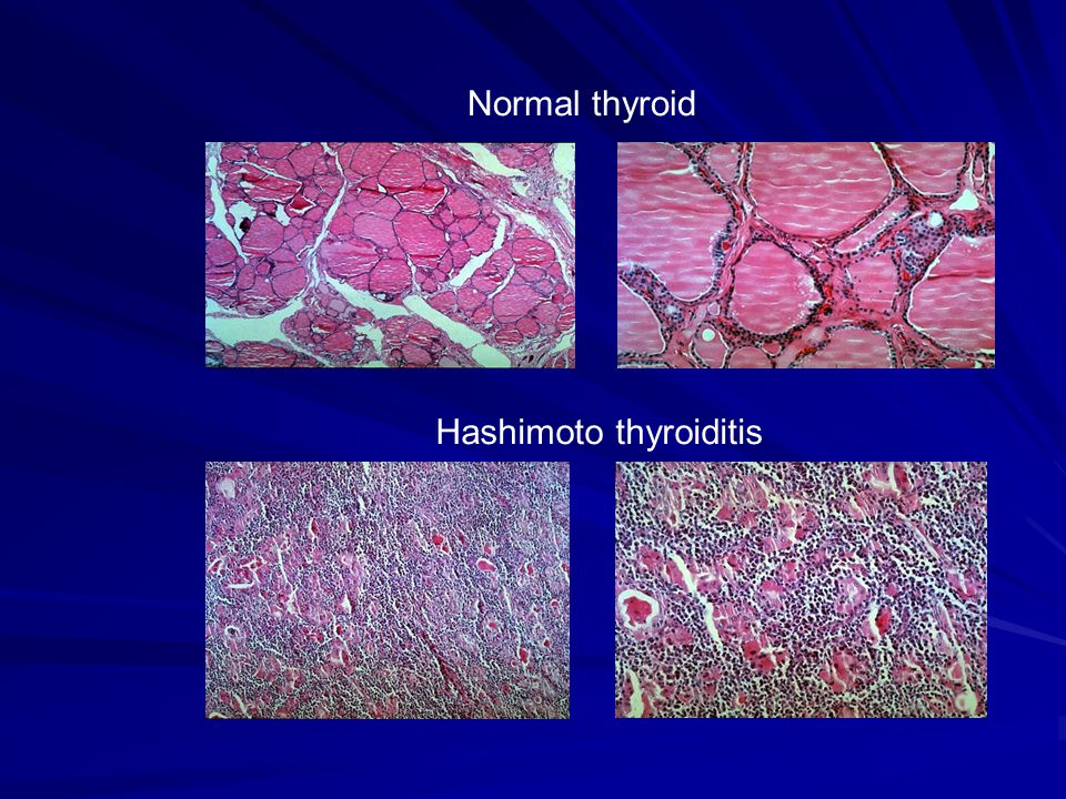Normal thyroid Hashimoto thyroiditis