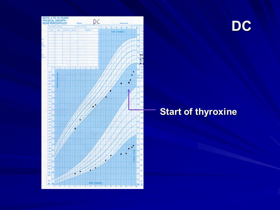 DC Start of thyroxine