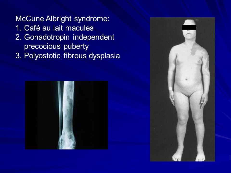 McCune Albright syndrome: